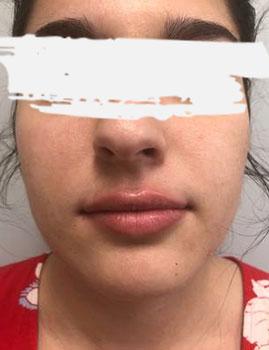 Lips Filler After