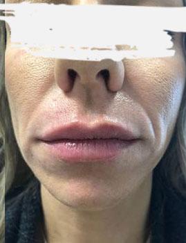 Juvederm Lips After