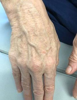 Photofacial Hand After
