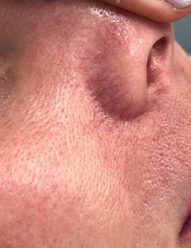 Veins Face Before