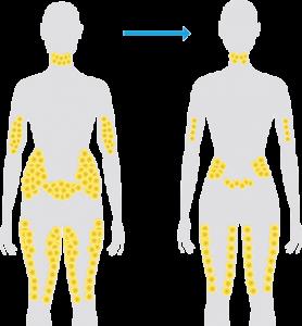CoolSculpting Fat Cells
