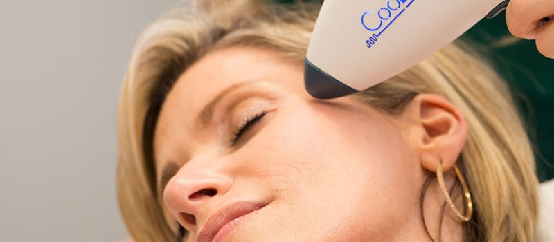 Intensif Micro-Needling With Radio Frequency