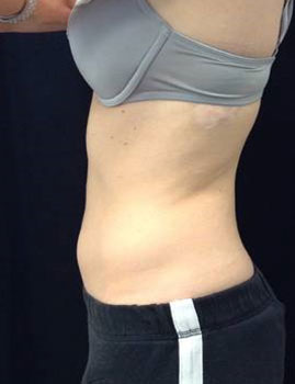 CoolSculpting Stomach After