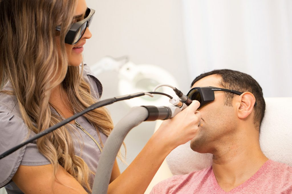 Man getting laser hair removal on his face at Pure Aesthetics